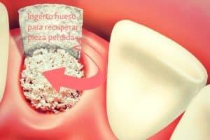 injerto hueso dental postoperatorio