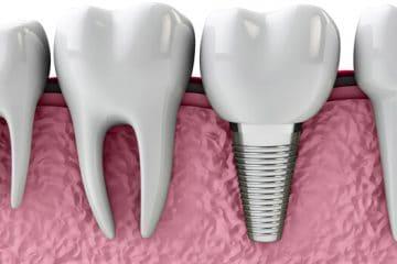 El tornillo del implante queda dentro de la encía