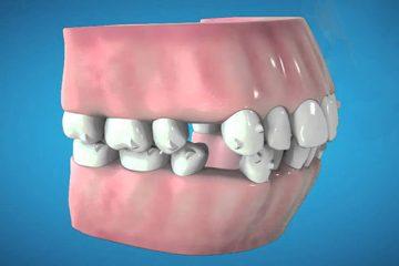 Invisalign para la extracción de primeros premolares