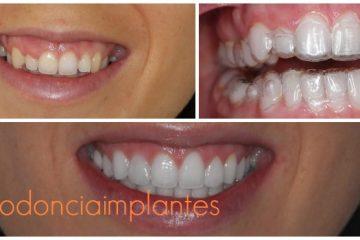 ortodoncia invisalign implantes