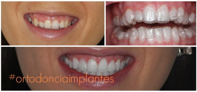 Funda pues tratamiento de brackets - Salud dental ...