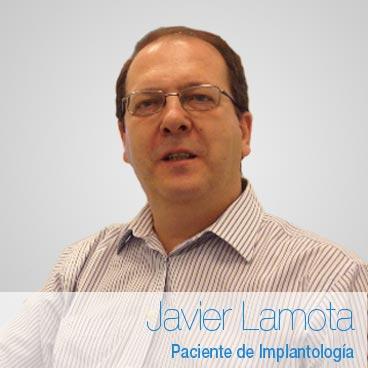 Javier Lamota: opinión Implantes Dentales