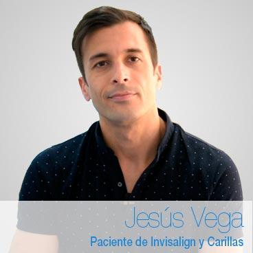 Jesús Vega – Opinión Invisalign y carillas
