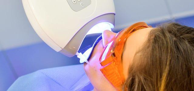 Desventajas del blanqueamiento dental