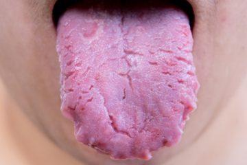 Cómo tratar la lengua fisurada