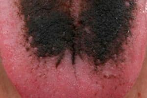 Boca con lengua vellosa negra