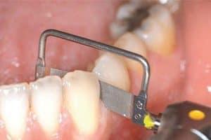 Tira de pulir para reducir el ancho del diente