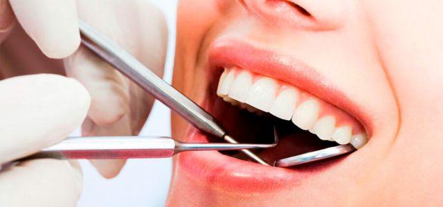 Higiene bucal con implante dental