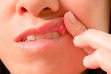 Las aftas aparecen en la boca
