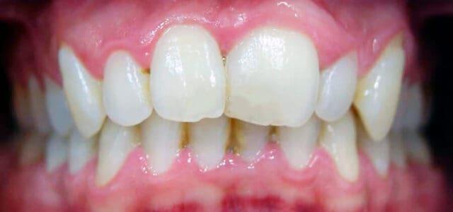 Reducir tamaño de los dientes grandes
