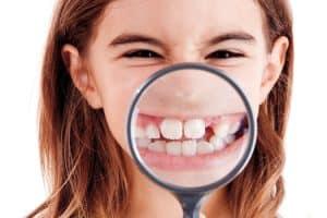 Alteraciones en el tamaño de los dientes