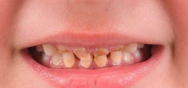 Caries en dientes de leche