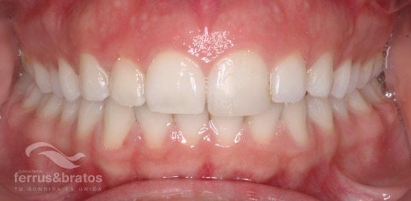 Ortodoncia-lingual-caso