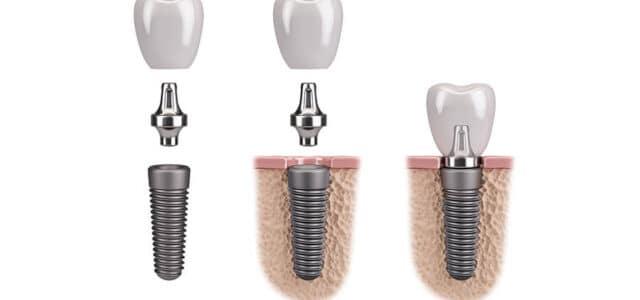 Técnicas para colocar un implante dental