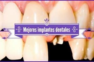 mejores implantes dentales del mundo