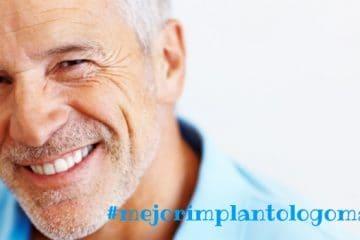 mejor implantologo madrid