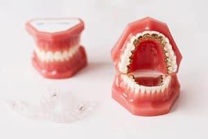 Opiniones de ortodoncia discreta para adultos