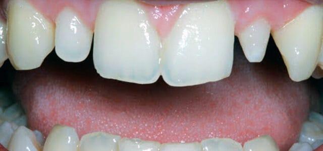 Anomalía en el tamaño del diente