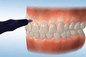 Microperforaciones en tratamientos con brackets
