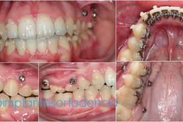 microimplantes en ortodoncia artículos