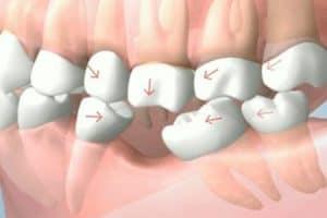 Se pueden caer los dientes