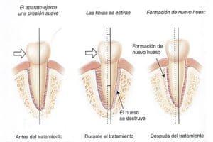 Movimientos de dientes tras microperforaciones de encía