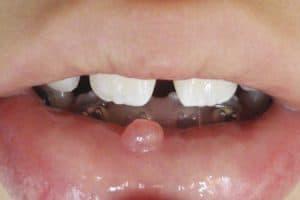 Niño con mucocele en el labio