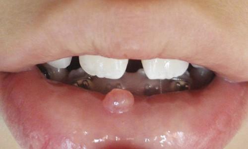 granitos en los labios dela boca por fuera