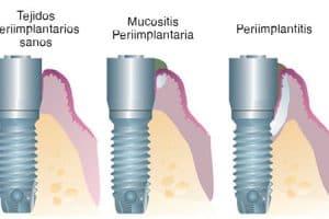 Mucositis vs Periimplantitis