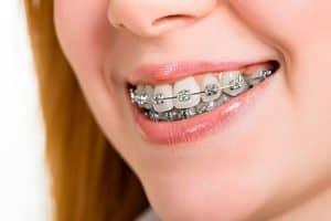 Mujer con ortodoncia de brackets