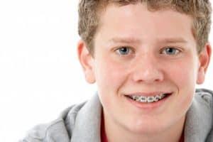 Ortodoncia con brackets para niños