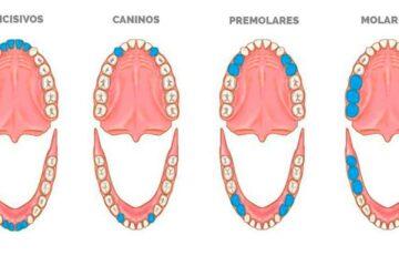 ¿Sabes qué nombre reciben realmente cada uno de tus dientes?