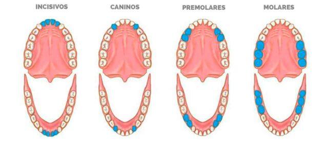 imagenes de las diferentes clases de dientes