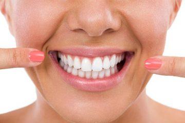 Blancorexia: cuando el color de tus dientes se convierte en obsesión