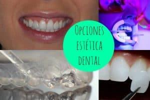 estetica dental antes y despues