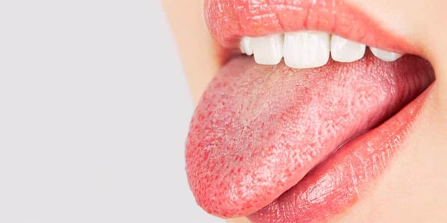 exceso de saliva en la boca y espuma tipo 1 diabetes