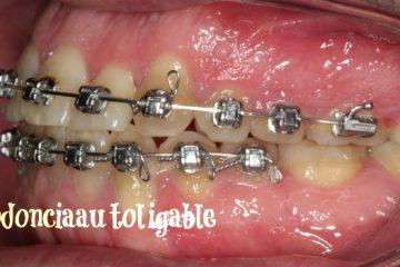 ortodoncia autoligable ventajas