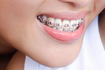 Tratamiento combinado: ortodoncia y cirugía ortognática