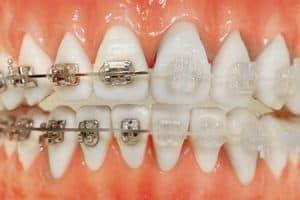 Tratamiento ortodoncia zafiro