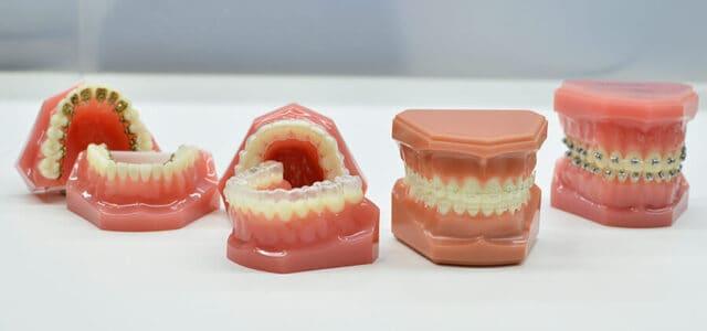 Ortodoncia y carillas dentales