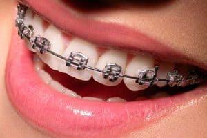 Tratamiento de ortodoncia para juntar los dientes