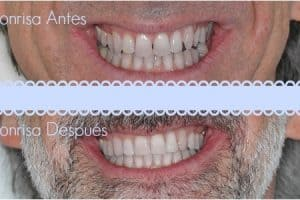 ortodoncia implantes antes despues