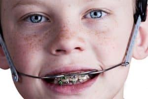 Tratamiento ortodoncia interceptiva
