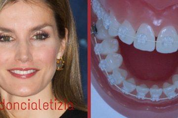 ortodoncia invisible letizia ortiz