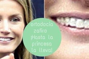 ortodoncia celebrities