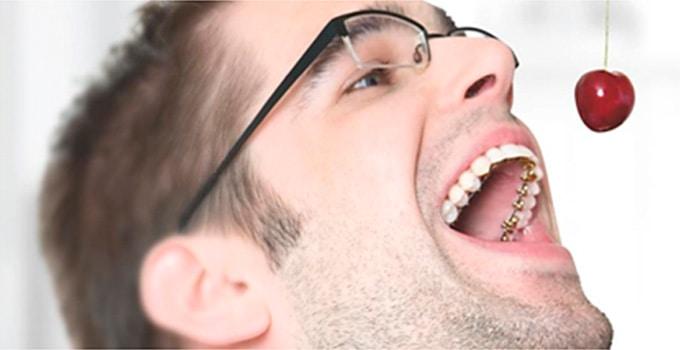 ortodoncia lingual opiniones