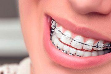Ortodoncia mixta con brackets metálicos y transparentes