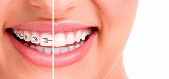 Brackets para dientes separados