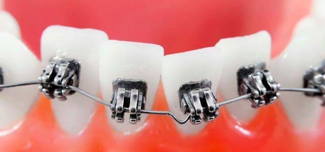 Huecos entre los dientes