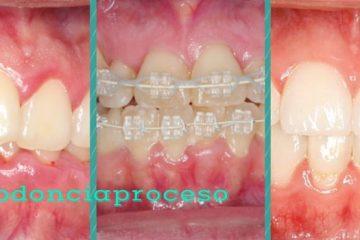 ortodoncia proceso